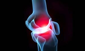 Боль в колене, лечение