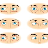 Eye-Exercises